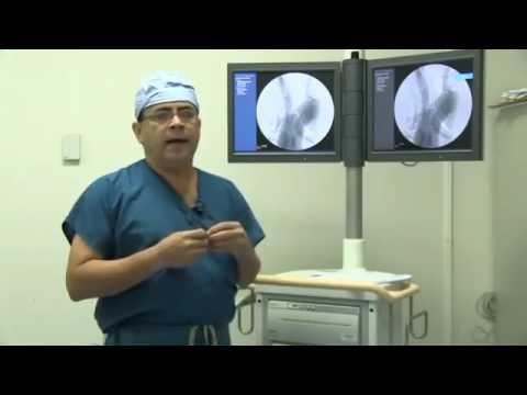 Estenosis Carotídea (Tu Salud Informa 1 T2)