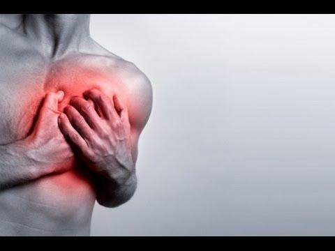 INFARTOS, ICTUS y otras enfermedades cardiovasculares PASO A PASO
