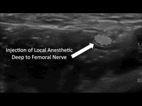 nerve block: youtube femoral nerve block, Muscles