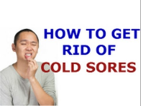 how to get rid of cold sores forever