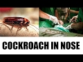 Chennai doctor takes out cockroach 'Alive' from woman's no..