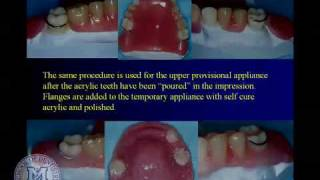 Repairing complete and partial dentures