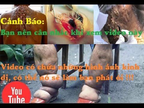 Kinh dị những loài sâu bọ gây biến dạng cơ thể người - [Tin mới 123]