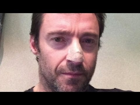Hugh Jackman Reveals Skin Cancer Diagnosis