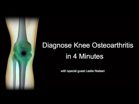 Diagnose Knee Osteoarthritis in 4 Minutes