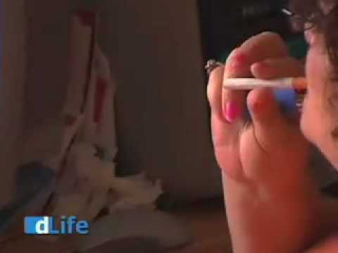 Smoking Addiction and Diabetes