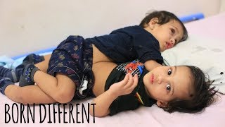 The Conjoined Twin Brothers Who Survived Separation | BORN DIFFERENT