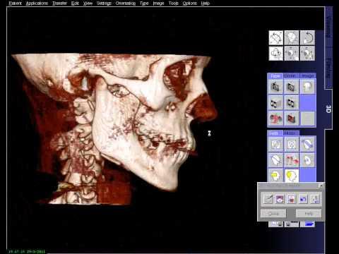TOMOGRAFIA COMPUTADORIZADA DE MANDIBULA E FACE 3D.avi