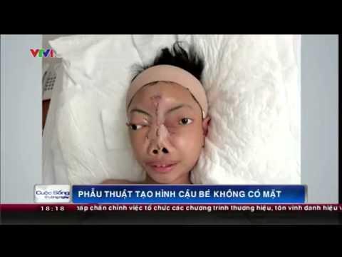 Phẫu thuật tạo hình thành công cho cậu bé không có mặt