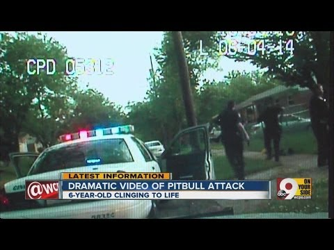 Ohio cops kill pit bulls mauling young girl