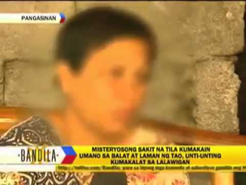Misteryosong Sakit, kumakalat sa Bayan ng Pangasinan!
