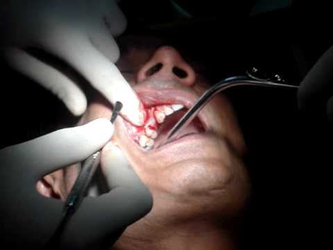 Sinus Lift Procedure With Bone Graft And Implant Placement - MyDentalBoutique