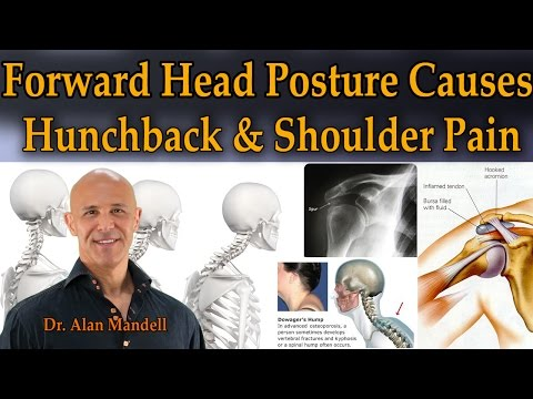 Forward Head Posture Causes Hunchback & Shoulder Pain - Dr Mandell