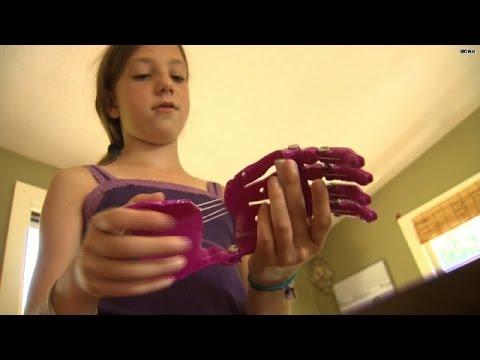 'Tween' invents printable prosthetic hand!