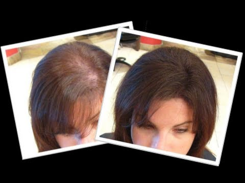 How to: Grow New Hair Naturally within a month
