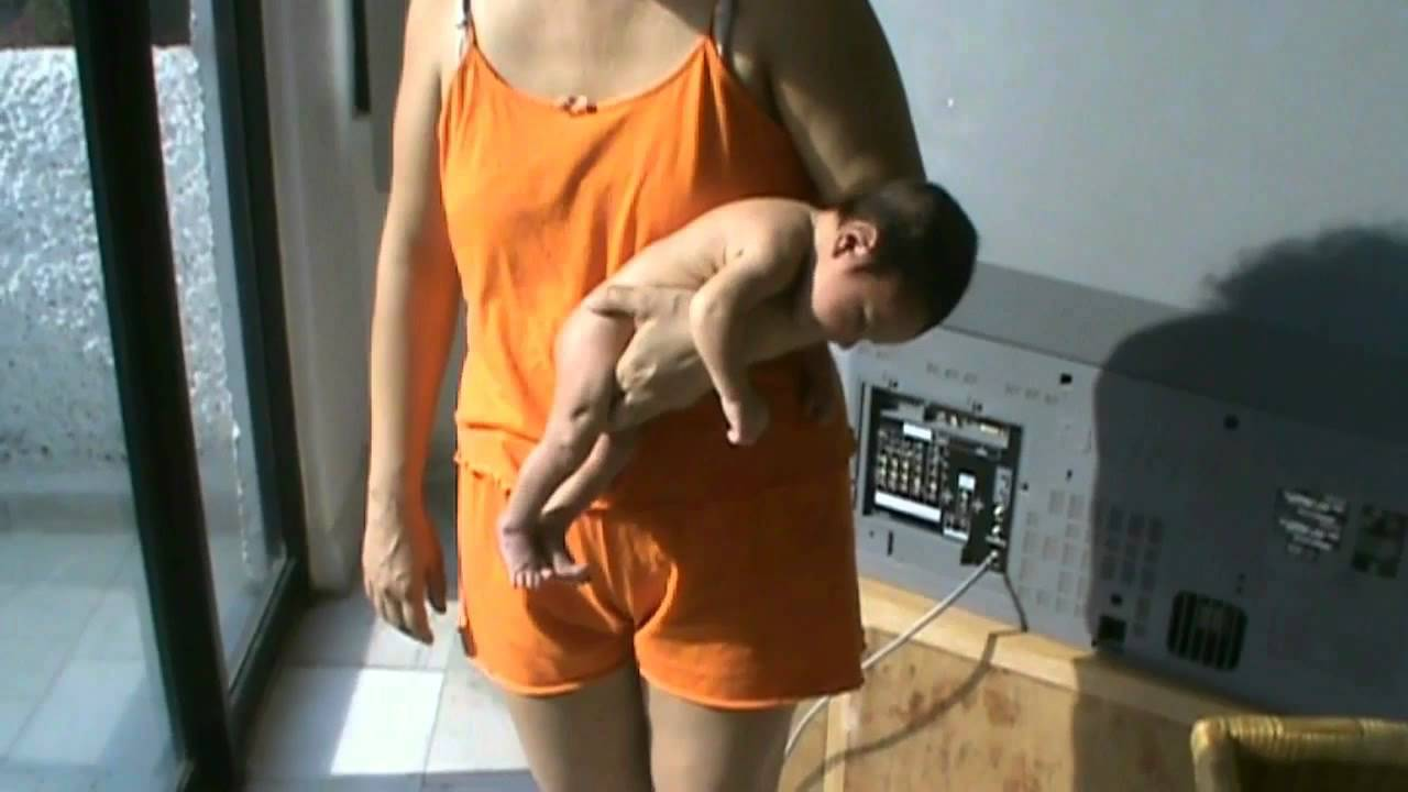 Baño Del Recien Nacido Normal:ICTERICIA FISIOLOGICA DEL BEBE RECIEN NACIDO Y BAÑOS DE SOL PARA