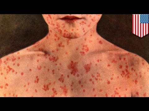 Oral measles drug: combat the infectious disease amid the anti-vaccination movement