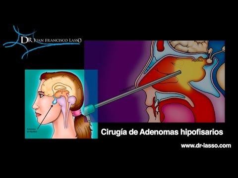 cirugía de tumor hipofisario