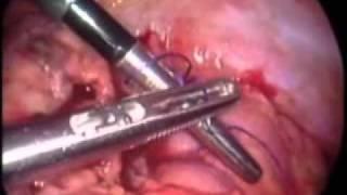 Laparoscopia Pediátrica Peritonitis Generalizada