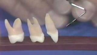Dental Anatomy and Periodontics