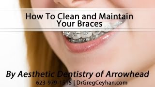 [How To Clean and Maintain Your Braces] Video