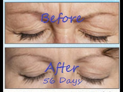 BEST Anti Aging Eye CREAM-- Made look 10 YEARS Younger