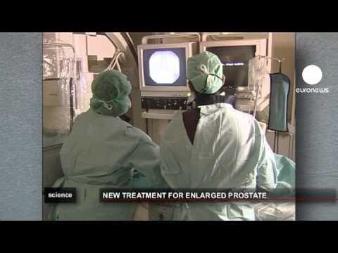 euronews science - Adénome de la prostate, un nouveau traitement prometteur