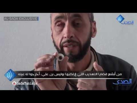 image vidéo سجين إسلامي ; بوليس بن علي أخرج له عينه