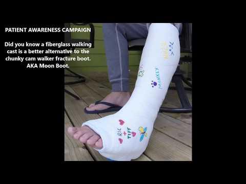 Cam Walker Walking Cast Fracture Boot Alternative Waterproof Short Leg Cast.