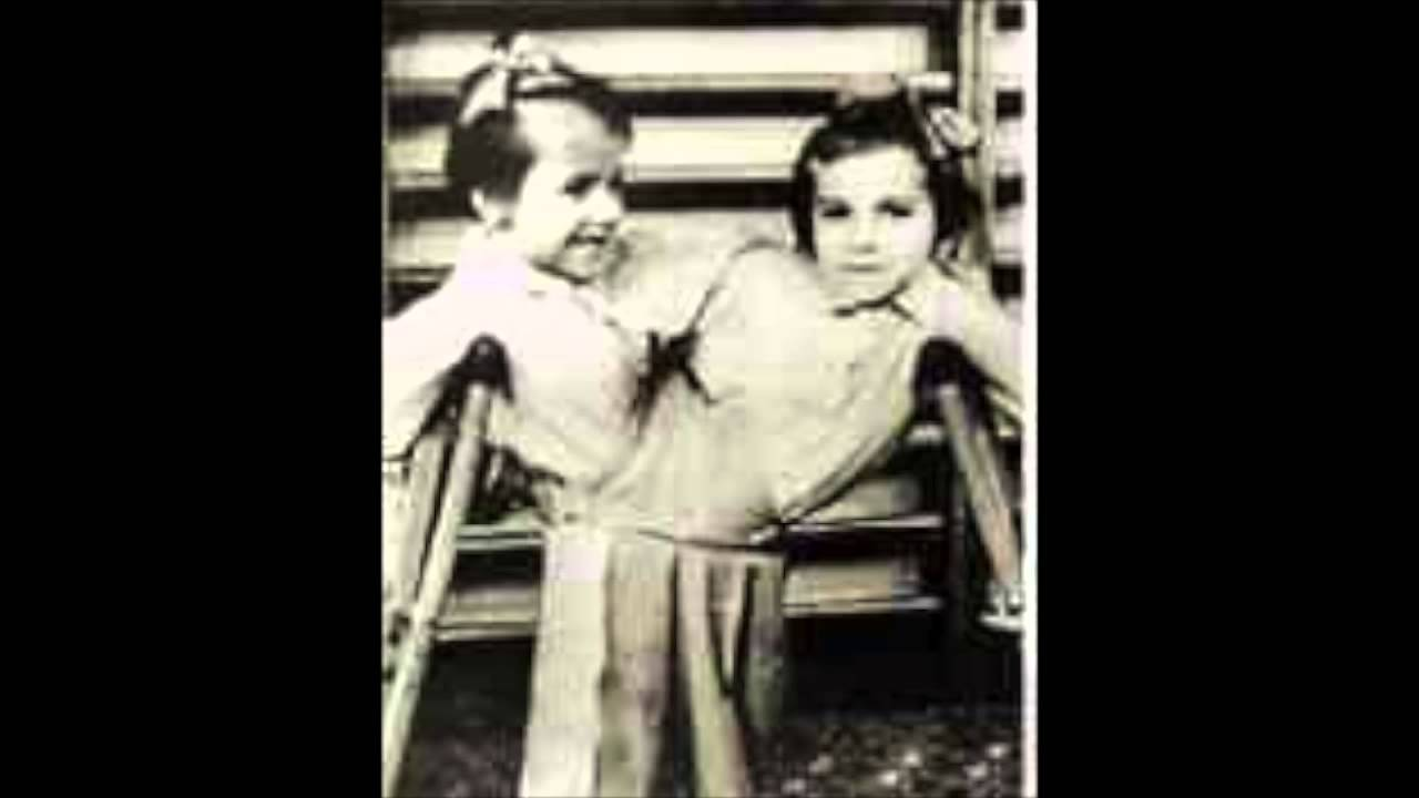 Josef Mengele Experiments On TwinsJosef Mengele Twins