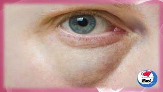 Remedios caseros naturales para eliminar bolsas en los ojos