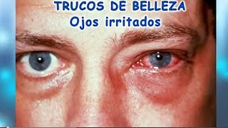 Tratamiento de ojos irritados