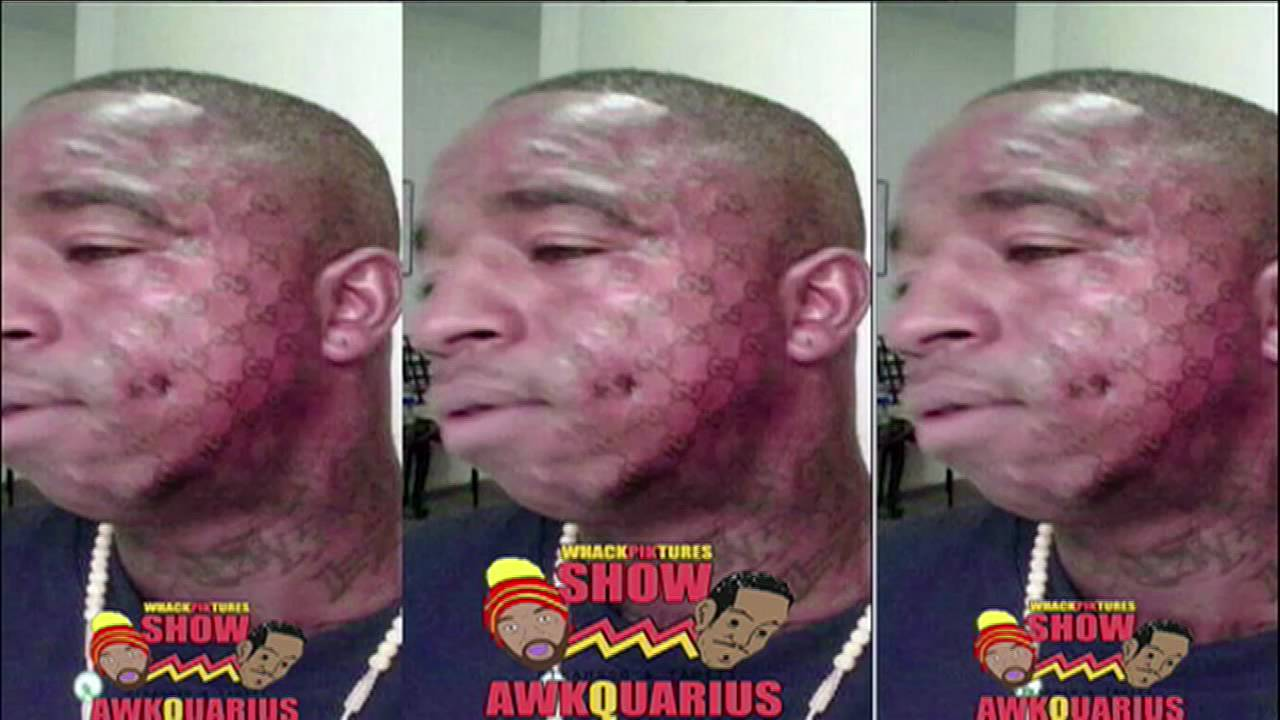 Soulja boy rich gang tattoo images for Soulja boy face tattoos removed