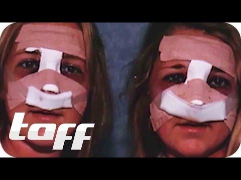 Beauty-Zwillinge durch viele Schönheitsoperationen | taff