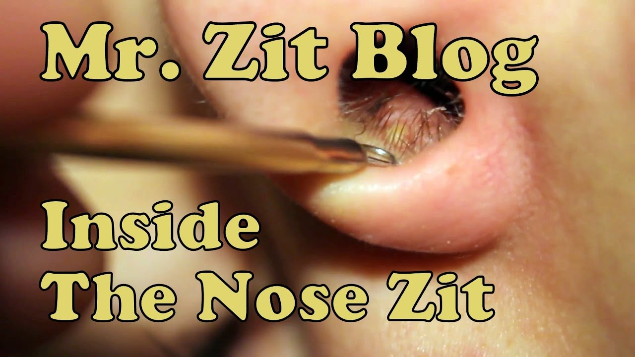 Difficult Pimple Inside The Nose Zit Stabilized And Hd