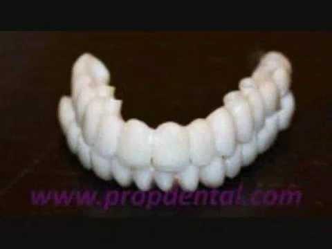 Implantes dentales y protesis sobre implantes de circonio