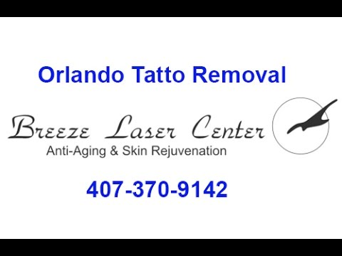 Orlando Tattoo Removal | Tattoo Removal Orlando | 407-370-9142 ...