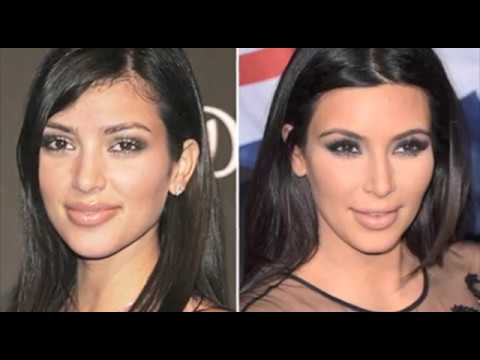 Las Vegas, NV Rhinoplasty Surgery Nose Job Before & After