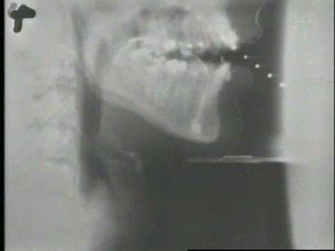 X-ray video of human speech WITH sound : videos