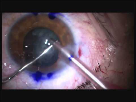 Cataract Surgery with Acriva Reviol Multifocal Toric IOL - İzzet Can, MD, Prof.