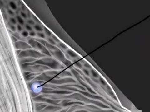 2007 breast biopsy