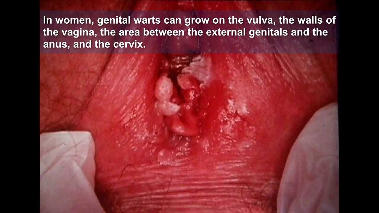 vaginal wart a cure