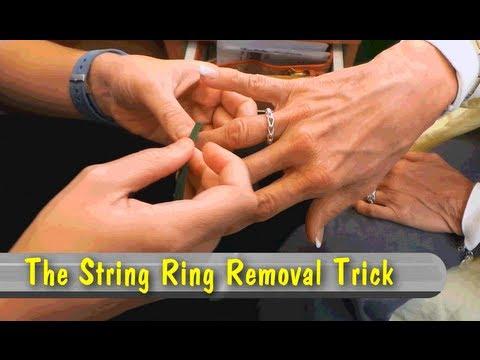 Sposób na zdjęcie obrączki z opuchniętego palca