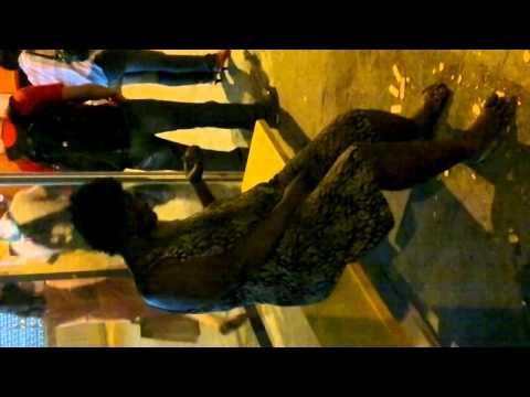 Moradora de rua do méier com bicheira no pé