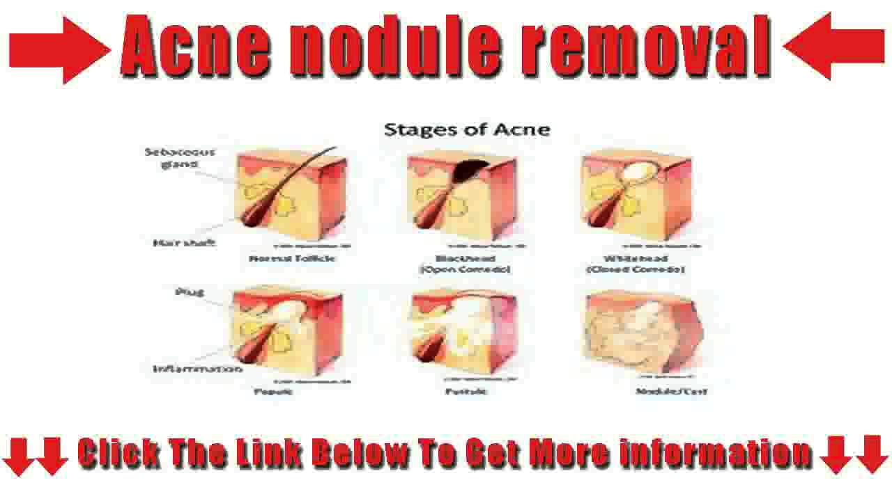 Acne nodule removal YouTube