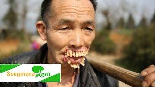 Kinh hoàng hàm răng mọc trên mặt vì bị chó sói cắn