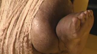 Giant Swollen Leg