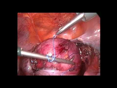 laparoscopic hysterectomy and uterine artery ligation  for uterine myoma