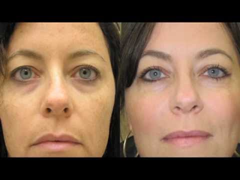 Look Younger Today Broadband Light Therapy Advanced