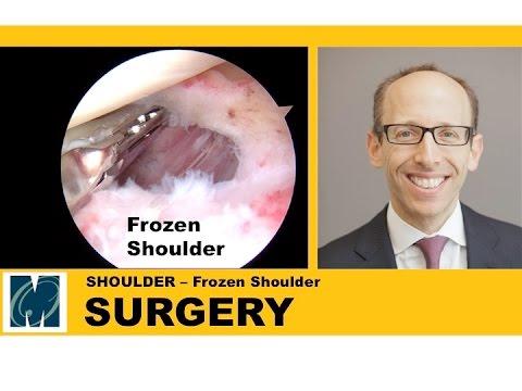 Frozen Shoulder - Adhesive Capsulitis